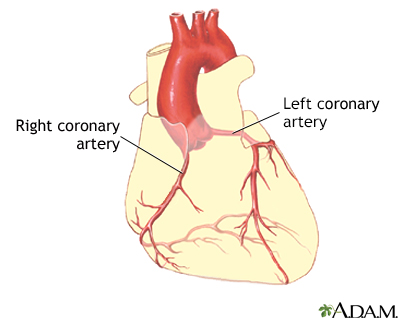 Coronary artery balloon angioplasty - Series